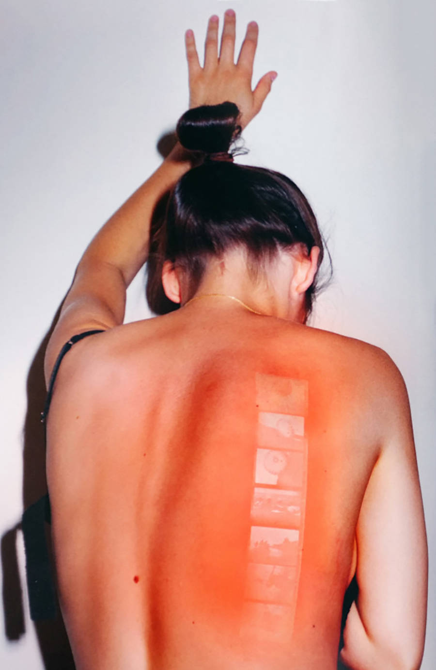 sunburnspictrues-1-900x1381